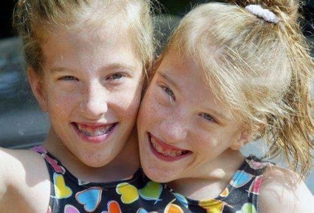 Dünyaya yapışık olarak gelen Abigail Hensel ve Brittany Hensel ikizler, doktorların 'ameliyatla ayrılması durumunda ölebilirler' açıklamasının ardından aynı bedende 27 yıldır yaşıyor. Üniversiteyi bitiren genç kızlar araba bile kullanabiliyor.