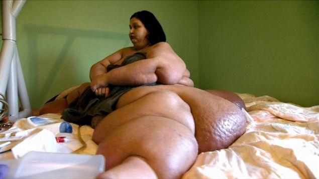 Mayra Rosales isimli ABD'li kadın sahip olduğu aşırı kilolardan dolayı 2009 yılında en çok kilolu kadın unvanına sahipti.