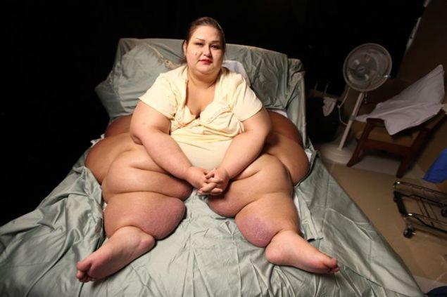 Yarım ton kilo veren kadın şoke etti