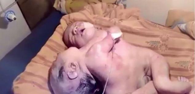 22 yaşındaki Hintli kadın doğurduğu yapışık ikizler doktorları şaşkınlık içinde bıraktı.