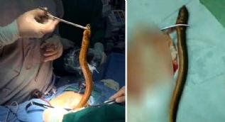 Karnından çıkarılan yaratık doktorları şoke etti
