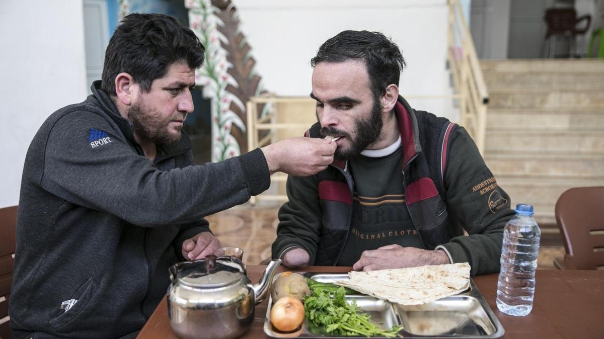 Suriyeli Maguni protez eline kavuşacağı günü bekliyor