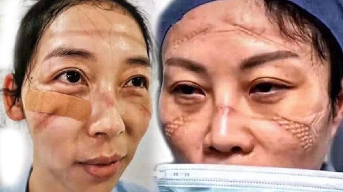 Wuhan'da çalışan sağlık personelinin ürküten görüntüleri