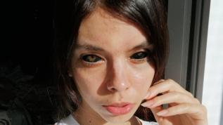 Gözünün içini siyaha boyattı, görme yetisini kaybetti