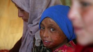 İç savaşın silinmeyen hafızası: Suriyeli çocuklar