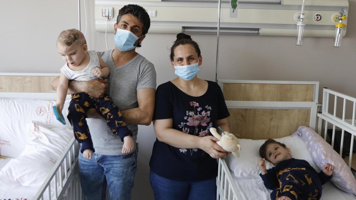 Ayrılan siyam ikizlerinin doktoru: Amacımız onları buradan yürüterek uğurlamak