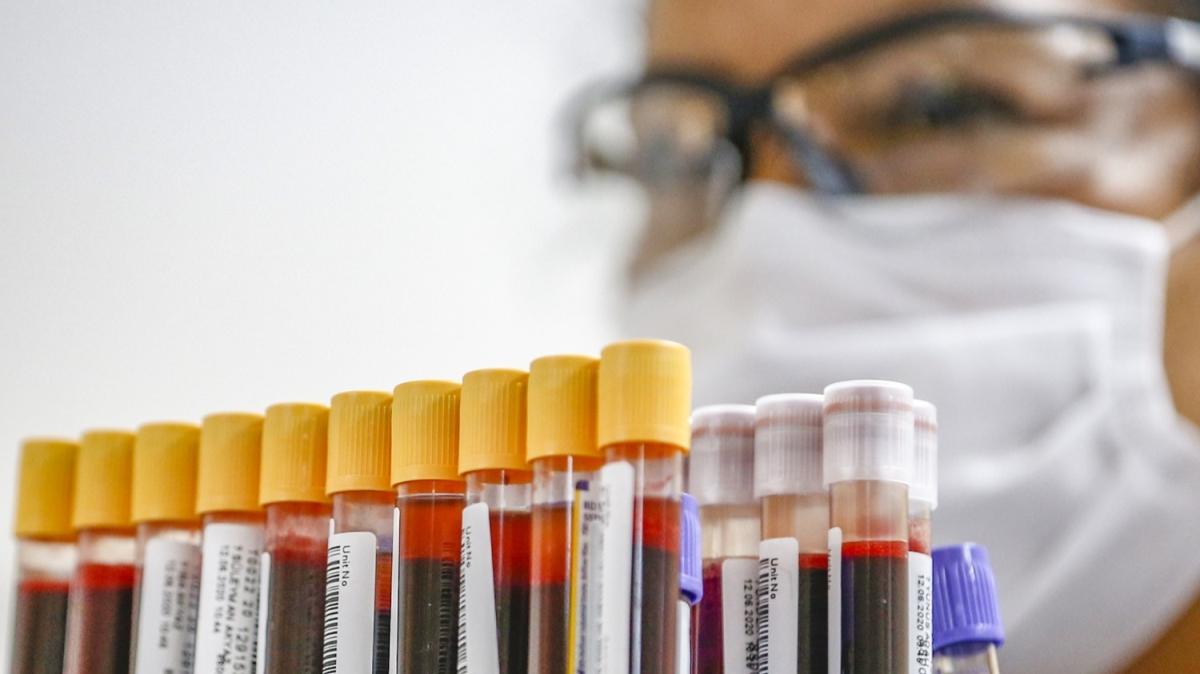 Türk Kızılay pandemi sürecinde tedbirleri had safhaya çıkardı