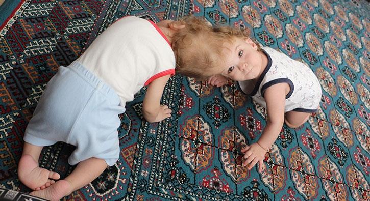 Kafadan yapışık siyam ikizleri 1 yaşında...